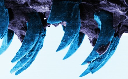 Limpet teeth University of Portsmouth